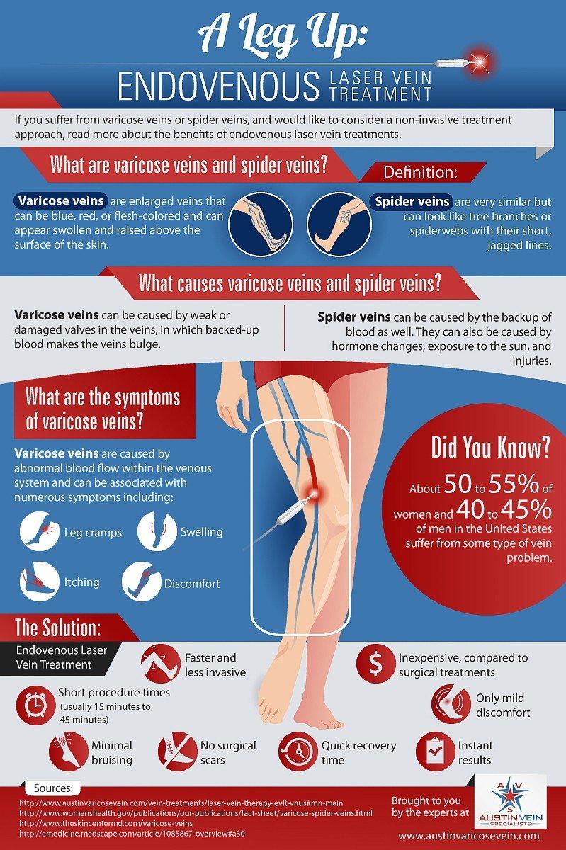 Endovenous Laser Vein Treatment