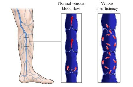 Venous Vein Insufficiency