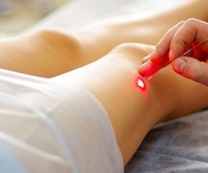 Round Rock Texas Sclerotherapy Laser Leg vein removal