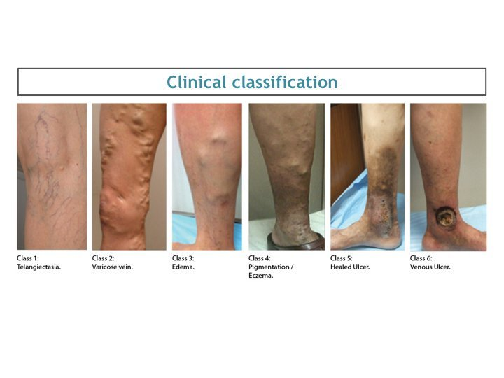 dermatitis pigmentation ankle and leg are dangers of varicose veins