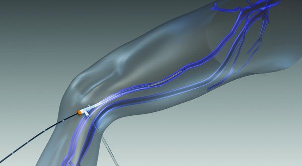 Possible Side Effects and Risks of Leg Vein Therapies