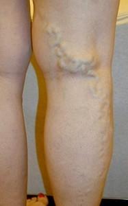 blue bulging leg veins that are varicose veins