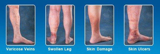 leg vein disease