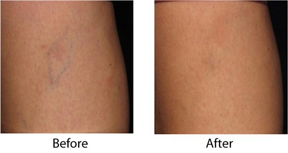 Reticular Veins Legs Austin Texas