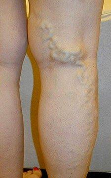 photograph of painful swollen leg veins austin texas