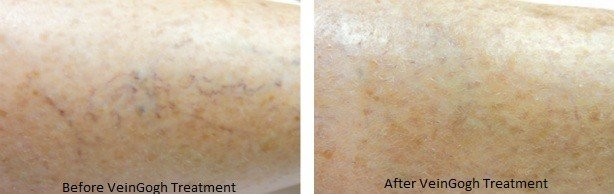 Before & After image of facial skin following VeinGogh vein treatment