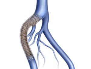 iliac vein stent May Thurner Syndrome
