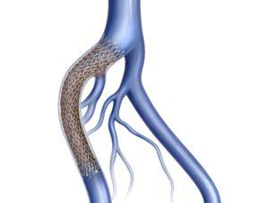 vein stent for deep venous thrombosis DVT