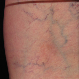 Leg Reticular Veins and Spider Veins