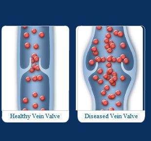 Varicose veins and blood clots