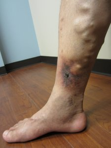 Ankle Venous Ulcer Wound Is a Danger of Varicose Vein Disease